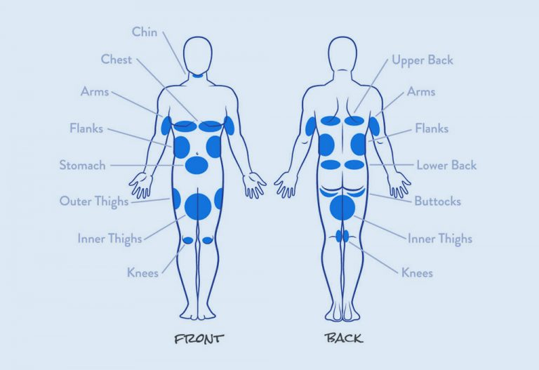 Coolsculpting Target Areas2